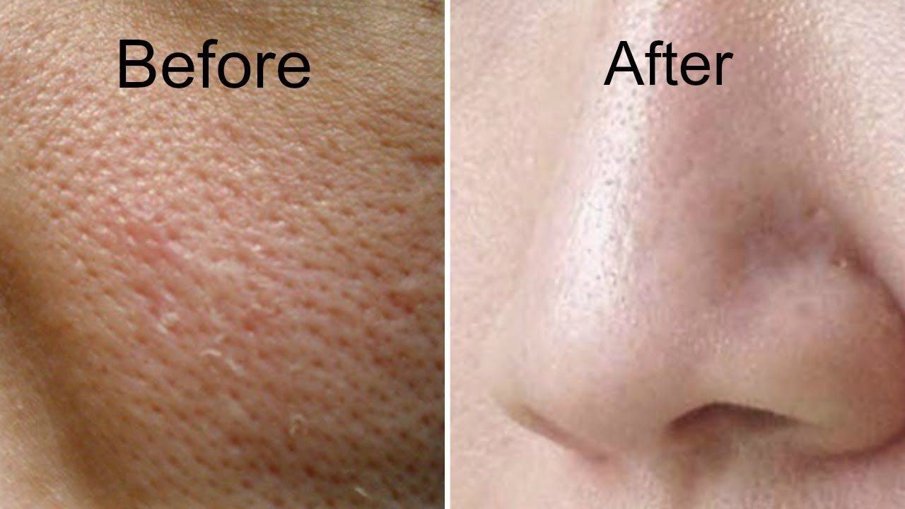 Large Pores Treatment in Abu Dhabi