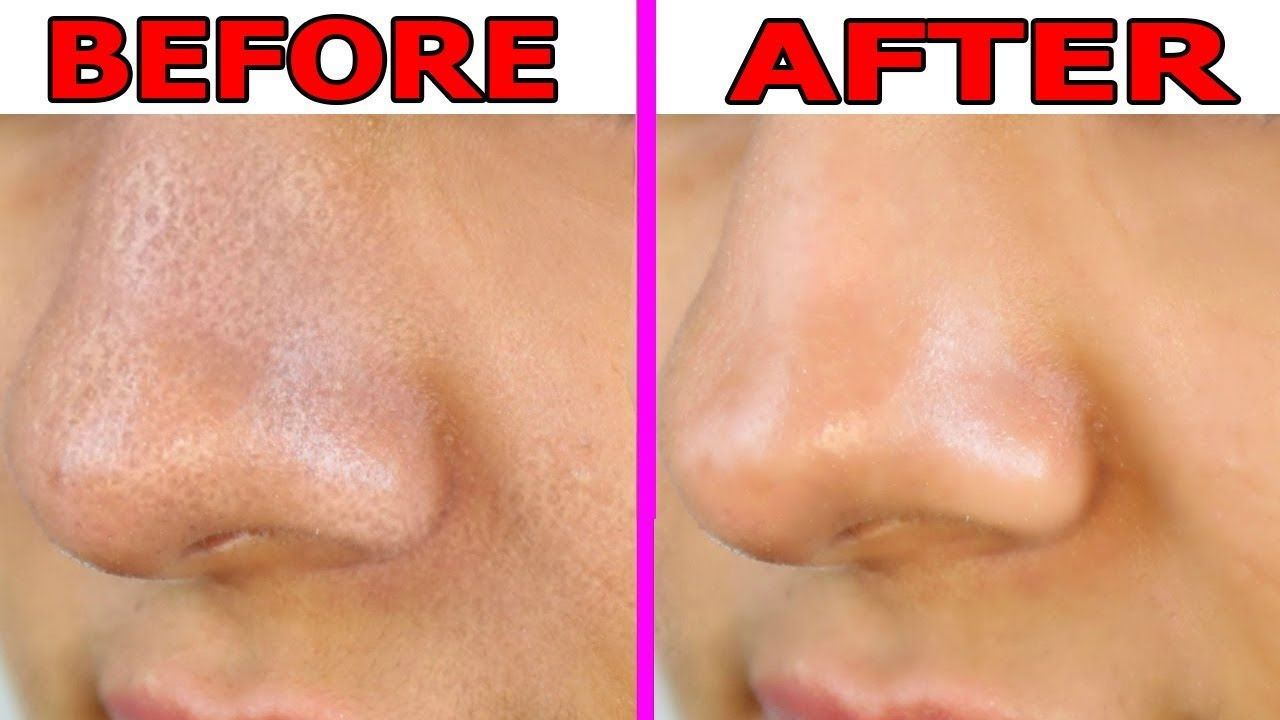 Large Pores Treatment in DUbai