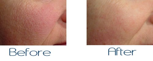Large Pores Treatment in Dubai & Abu dhabi