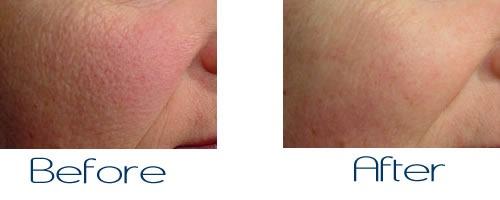 Large Pores Treatment in Dubai & Abu dhabi