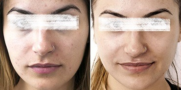 Laser Carbon Peel Treatment in Abu dhabi & Dubai