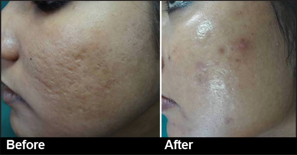 Laser Carbon Peel Treatment in Dubai & Abu Dhabi