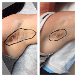 Laser Hyperhidrosis Treatment Dubai & Abu Dhabi