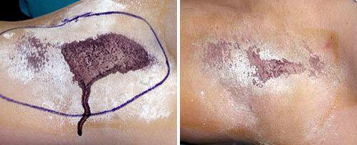 Laser Hyperhidrosis Treatment in Dubai