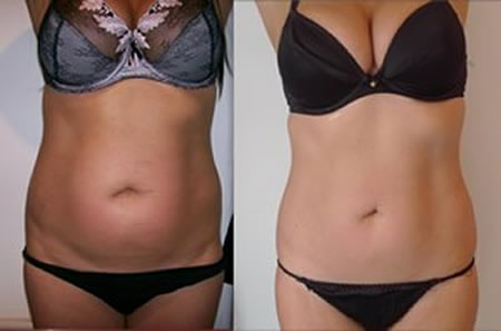 Laser Liposuction Dubai, Abu Dhabi & Sharjah