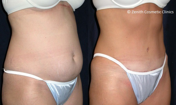 Laser Liposuction in Abu Dhabi