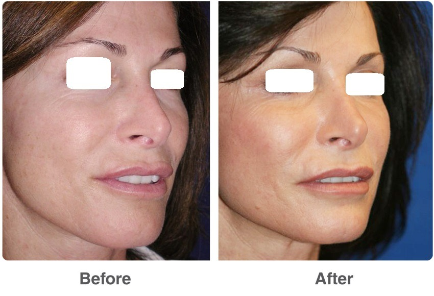 Laser Skin Resurfacing Dubai, Abu Dhabi & Sharjah