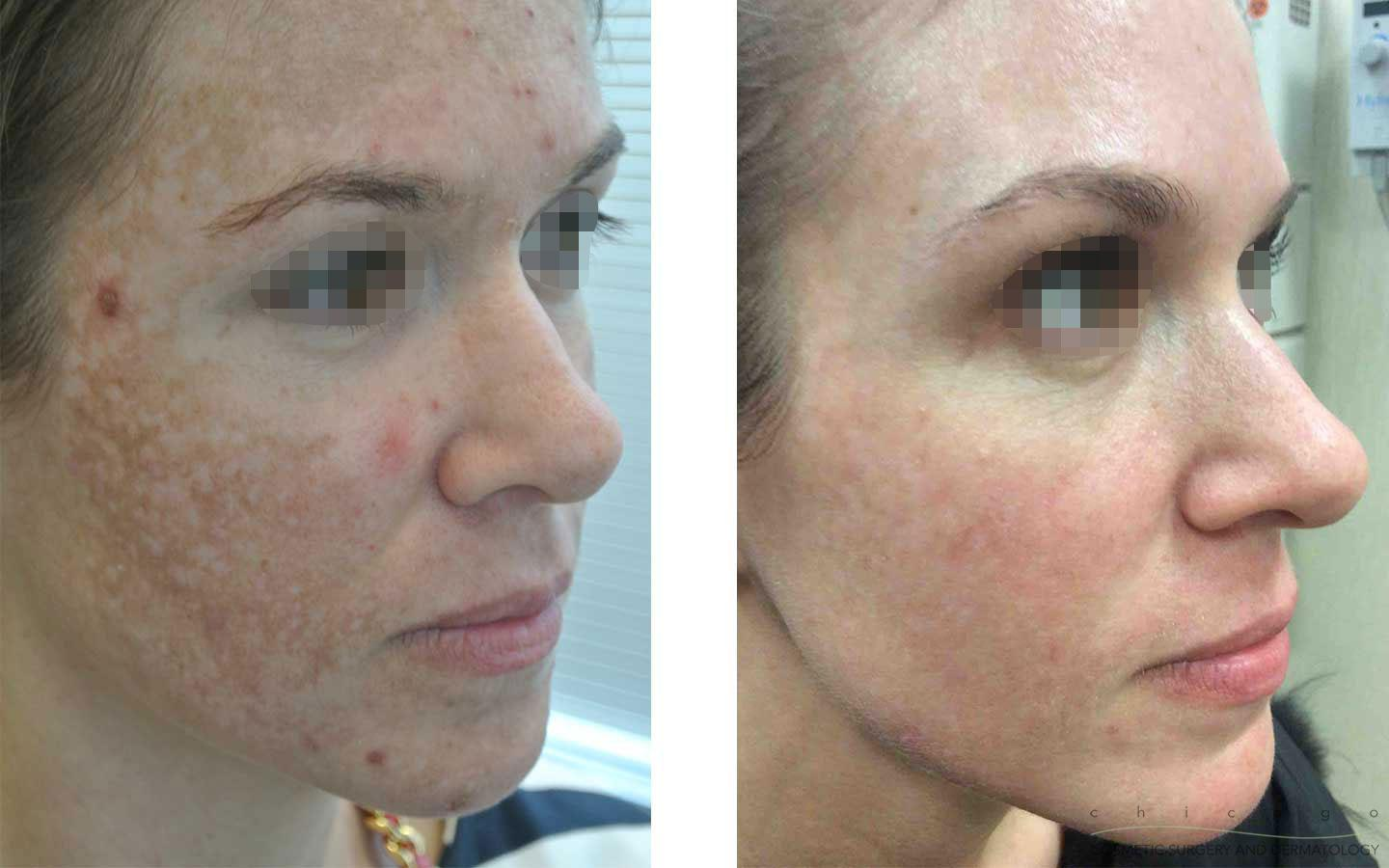 Laser Skin Resurfacing in Abu Dhabi
