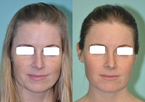 Laser Skin Resurfacing in Dubai