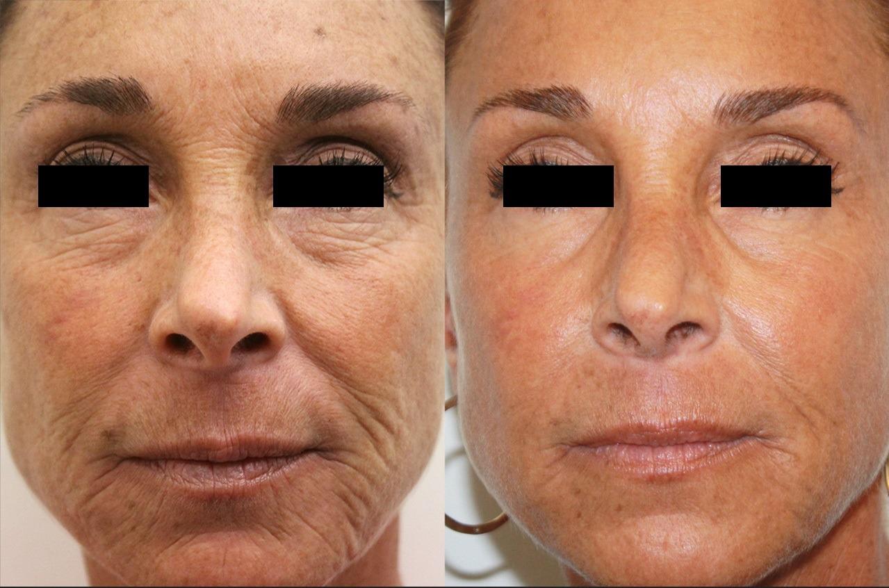 Laser Skin Tightening Dubai & Abu Dhabi