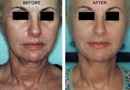 Laser Skin Tightening in Abu Dhabi