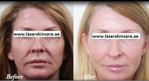 Laser Skin Tightening in Dubai, Abu Dhabi & Sharjah
