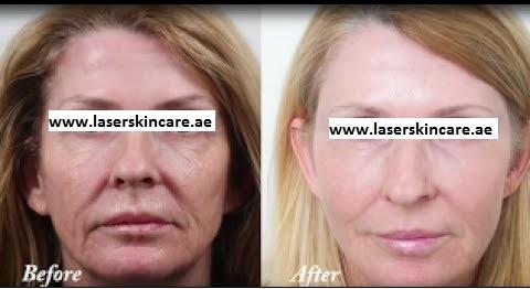 Laser Skin Tightening in Dubai, Abu Dhabi & Sharjah