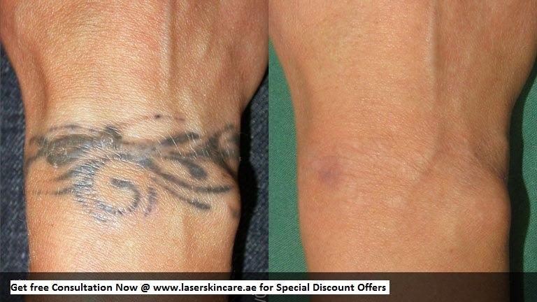 Laser Tattoo Removal Dubai, Abu Dhabi & Sharjah