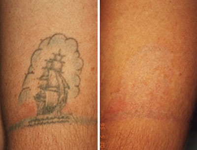 Laser Tattoo Removal Dubai & Abu Dhabi