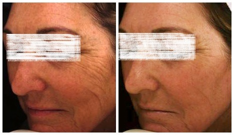 Laser Treatment for Pigmentation in Dubai Abu dhabi & Sharjah