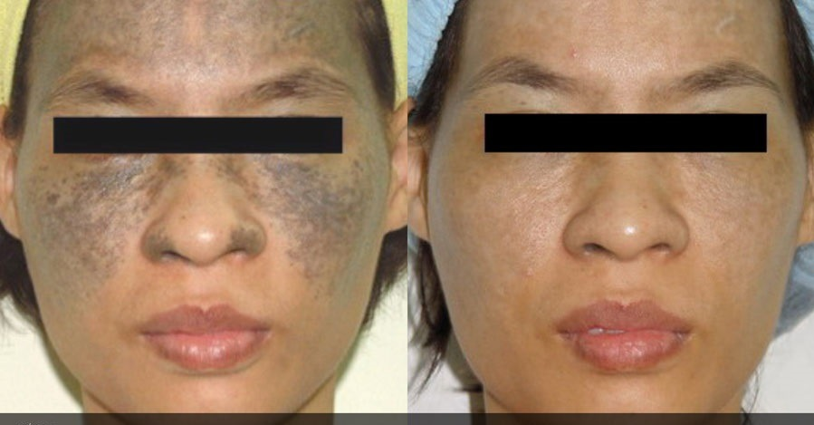 Laser Treatment for Pigmentation in Dubai & Sharjah