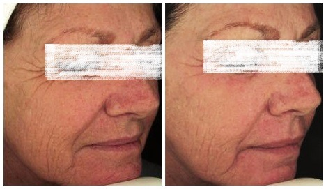 Laser Treatment for Pigmentation in Dubai