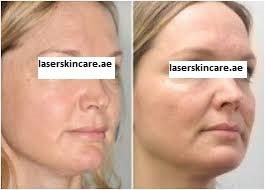 Mesotherapy Treatment in Abu Dhabi