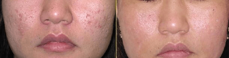 Micro Needling with PRP Therapy in Dubai & Abu Dhabi