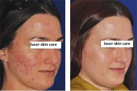 Micro needling Treatment for Acne Scars Dubai, Abu Dhabi & Sharjah