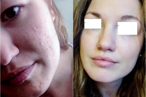 Micro needling Treatment for Acne Scars Dubai & Abu Dhabi