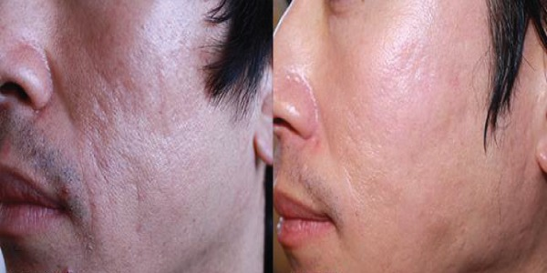 Micro needling Treatment for Acne Scars in Abu Dhabi