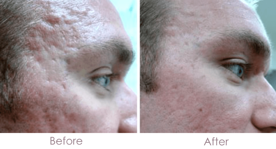 Micro needling Treatment for Acne Scars in Dubai