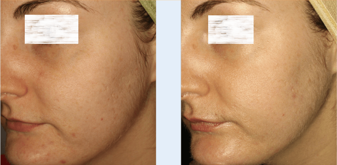 Microneedling Treatment in Dubai