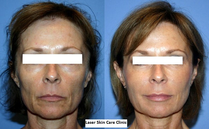 Non Surgical Facelift in Abu DHabi