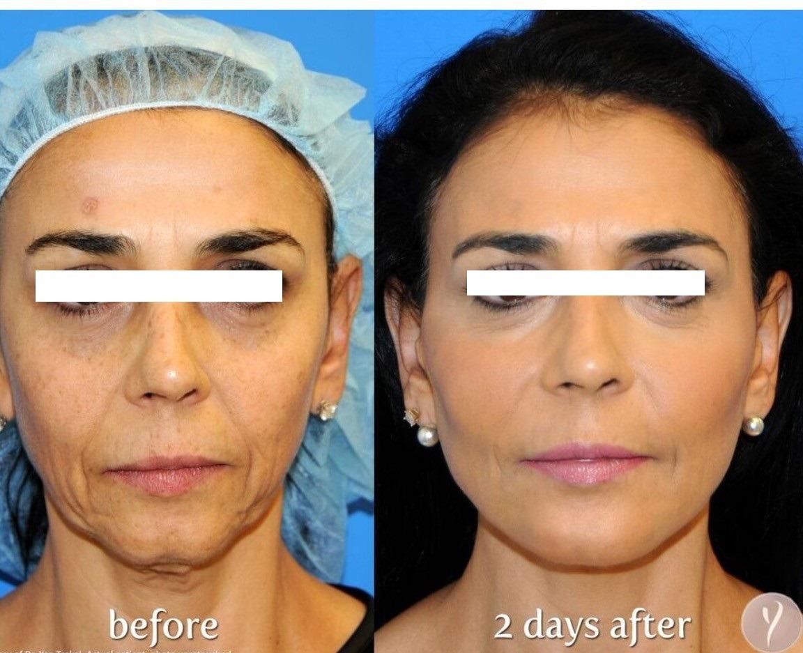 Non Surgical Facelift in Dubai