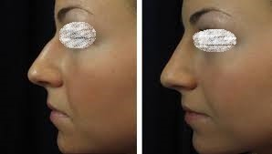 Non Surgical Nose Job in Abu Dhabi