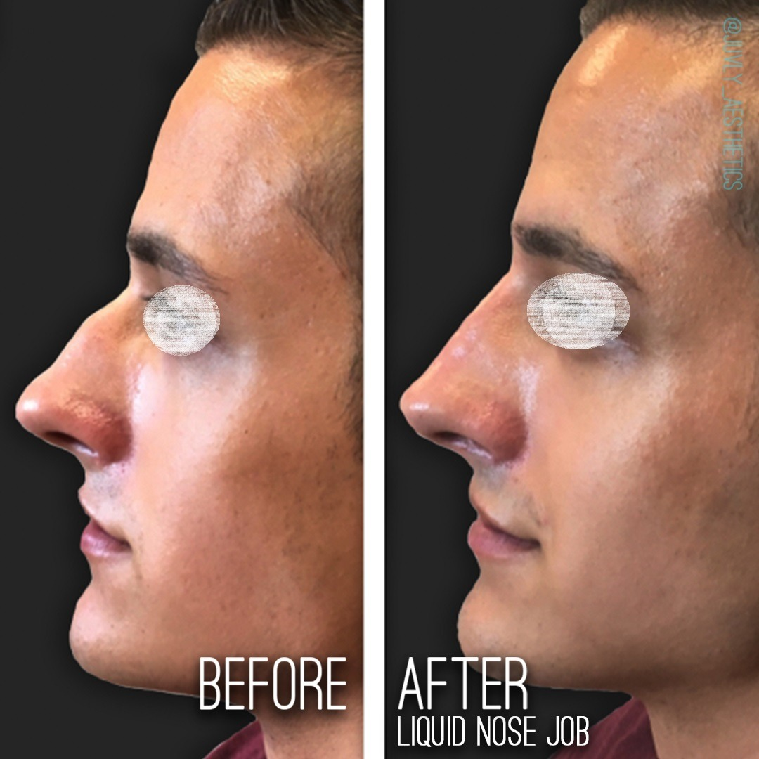 Non Surgical Nose Job in Dubai Abu Dhabi & Sharjah
