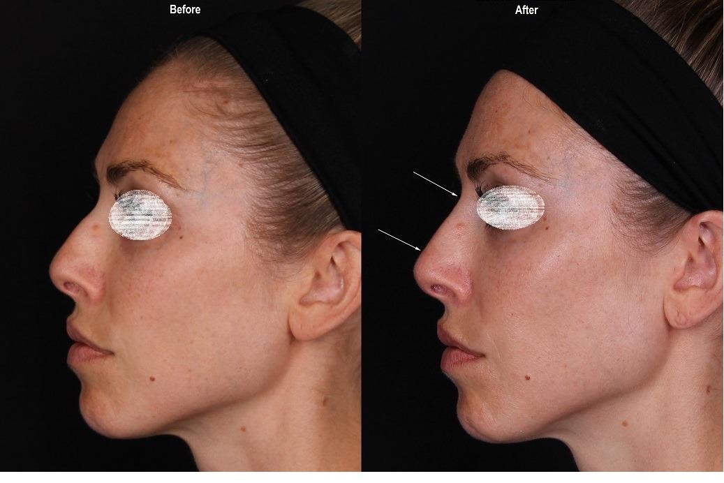 Non Surgical Nose Job in Dubai & Abu dhabi