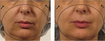 OxyGeneo Facial Treatment in Dubai