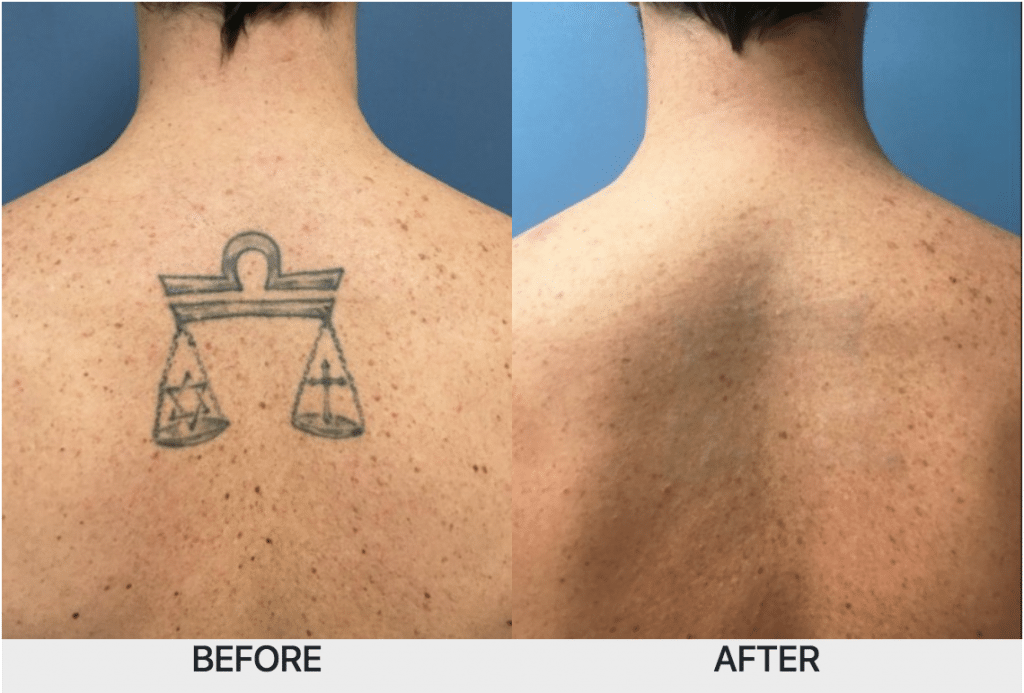 PICO Laser Treatment Dubai & Abu Dhabi