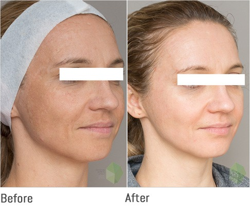 Pigmentation Treatment in Abu Dhabi & Dubai