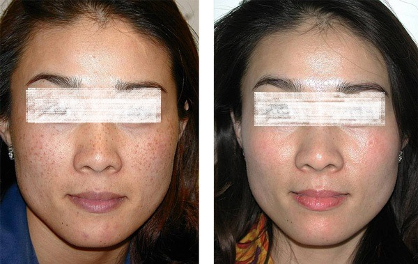 Pigmentation Treatment in Dubai, Abu Dhabi & Sharjah