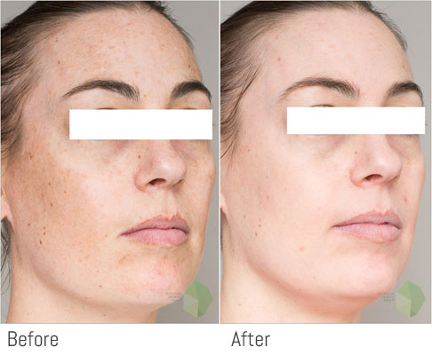Pigmentation Treatment in Dubai & Sharjah