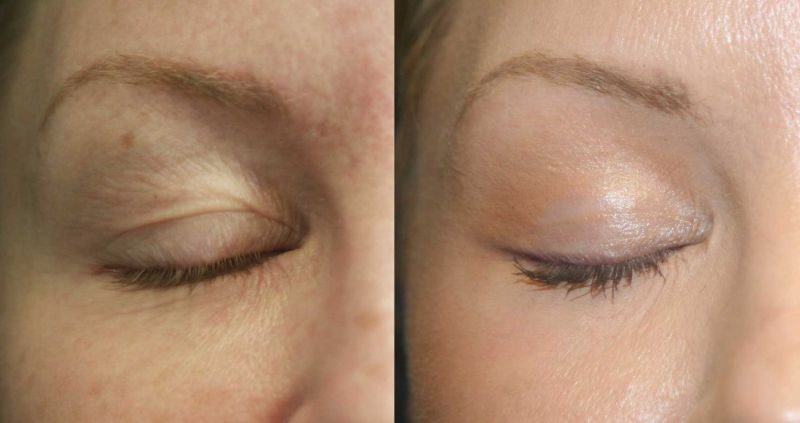Plexr Plasma Eye Lift in Dubai Abu Dhabi & Sharjah