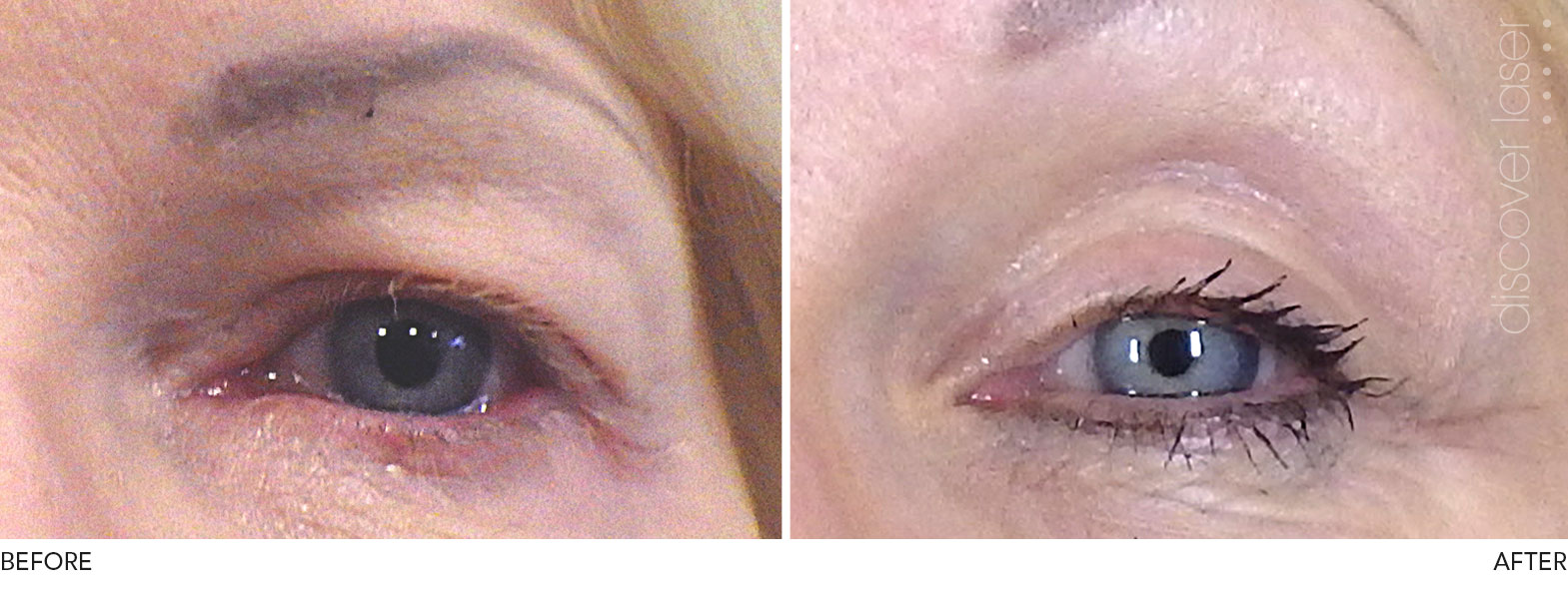 Plexr Plasma Eye Lift in Dubai
