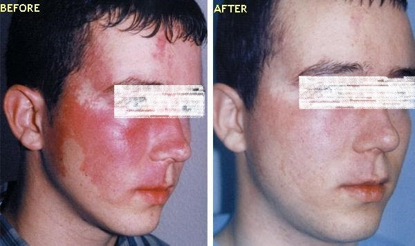 Port Wine Stains Treatment in Dubai & Sharjah