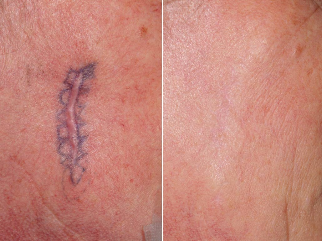 Post Surgical Scars in Abu Dhabi