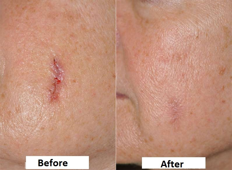 Post Surgical Scars in Dubai