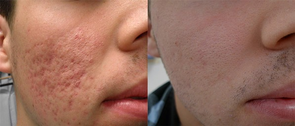 Radio Frequency Treatment for Acne Scars Dubai, Abu Dhabi & Sharjah