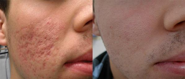 Radio Frequency Treatment for Acne Scars Dubai, Abu Dhabi & Sharjah