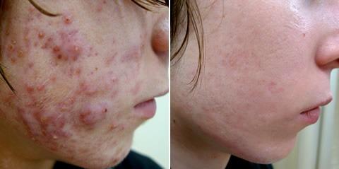 Radio Frequency Treatment for Acne Scars Dubai & Abu Dhabi