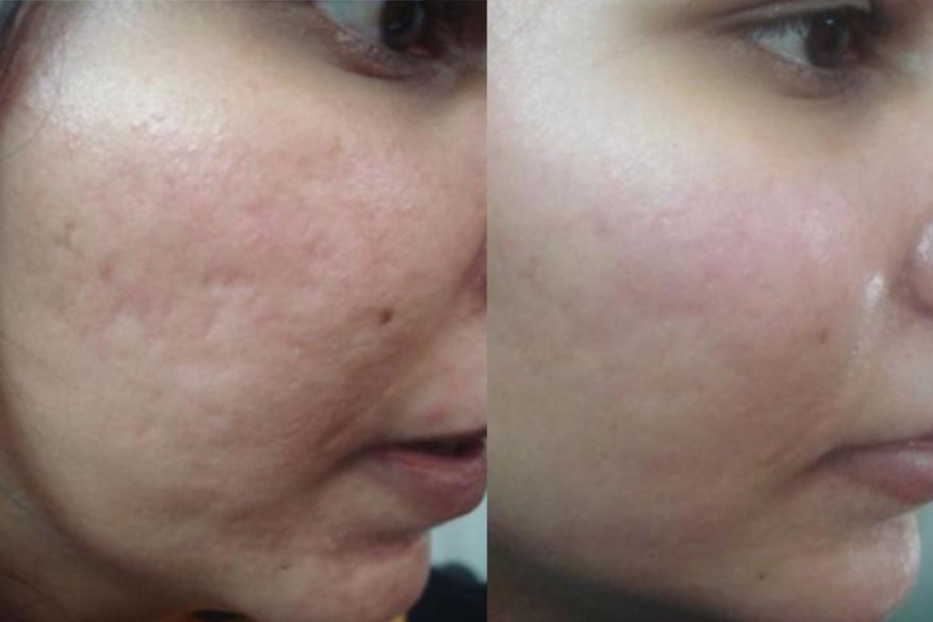 Radio Frequency Treatment for Acne Scars in Dubai