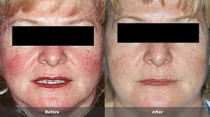 Rosacea Treatment in Abu Dhabi