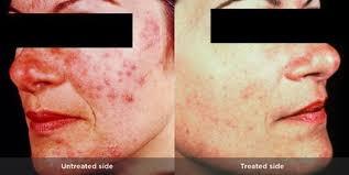 Rosacea Treatment in Dubai Abu Dhabi & Sharjah